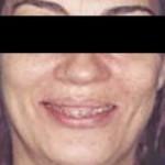 Fig. 1. Análisis facial inicial