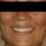 Fig. 12. Análisis facial y de sonrisa final