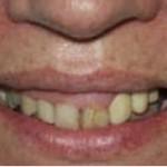 Fig. 2. Análisis inicial de la sonrisa