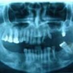 Fig. 3. Ortopantomografía inicial