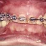 Fig. 6. Ortodoncia prequirúrgica. Se observan las prótesis provisionales