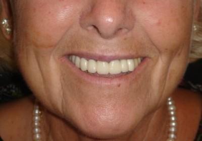 Arrugas faciales en surcos nasogenianos y marioneta