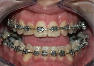 Clase III dentoesquelética con mordida abierta anterior.