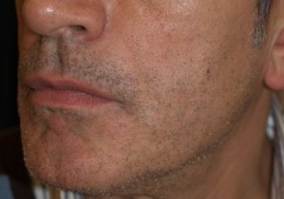 Corrección de las arrugas con ácido hialurónico