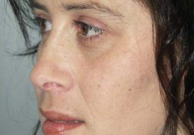 Resultado final tras cirugía ortognática
