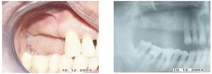 Fig. 2 y 3. Ausencia de dientes en maxilar superior con poca altura ósea en seno maxilar