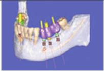 Fig. 2. Estudio Symplant, donde se planifica la emergencia de los implantes en función de los dientes previamente confeccionados