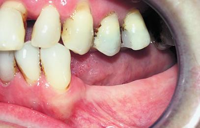 Fig. 1. Atrofia ósea en mandíbula, que imposibilita la colocación de implantes