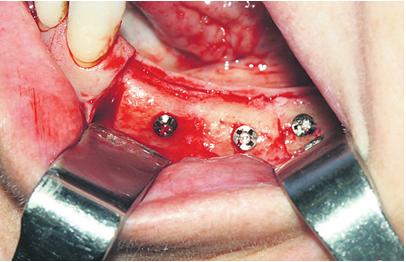 Fig. 2. Injerto óseo perfectamente integrado, que reconstruye la zona atrófica